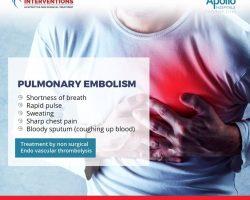 pulmonary embolism symptoms