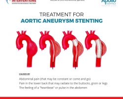 treatment for aortic-aneurysm-stenting