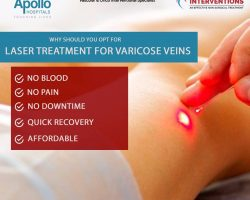 laser treatment for varicose veins