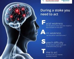 Neuro Vascular Treatment for Acute Stroke