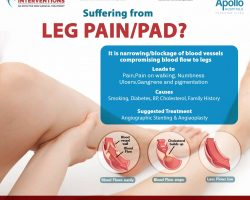 suffering from leg pain