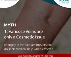 varicose veins are only a cosmetic issue