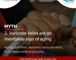 varicose veins are an invetiable sign of aging