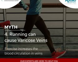 Varicose Veins Laser Treatment In Hyderabad