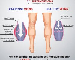 difference between varicose and healthy varicose