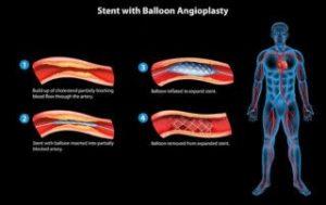 Peripheral Vascular Procedures | vascular interventions