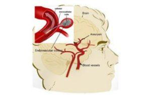 best vascular treatment in Hyderabad
