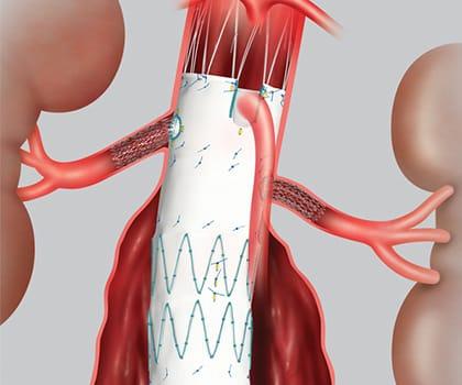 Peripheral Vascular Procedure