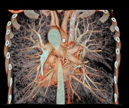 Bronchial Artery Embolization