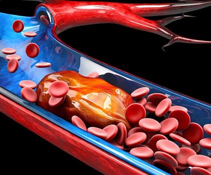 Pulmonary Embolism Thrombolysis