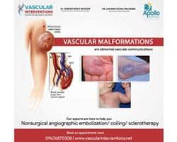 Best vascular specialist in Hyderabad