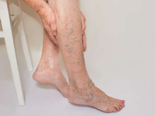 Overview, Benefits, and Expected Results of Laser Vein Treatment.