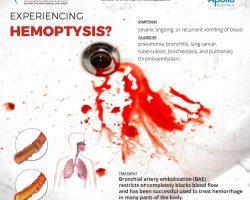 experiencing hemoptysis