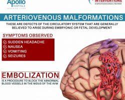 arteriovenous-malformation symptoms