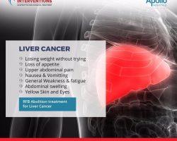 liver cancer symptoms - Vascular Interventions