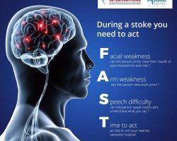 Neuro Vascular Treatment for Acute Stroke