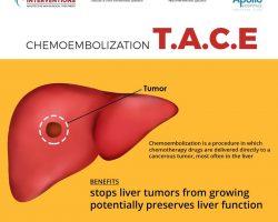 Chempembolization Tace - Vascular Interventions