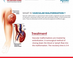 What is Vascular Malformation? - Vascular Interventions