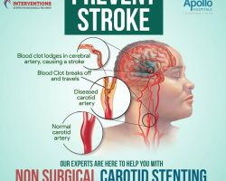 non surgical carotid stenting - vascular interventions