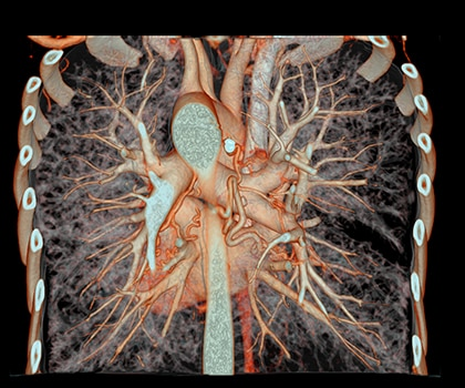 Bronchial Artery Embolization