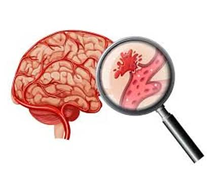 Cerebral Bleed Hemorrhage