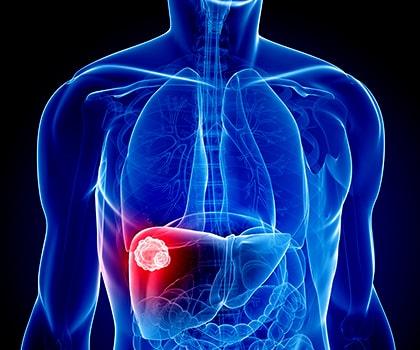 Chemoembolization -TACE