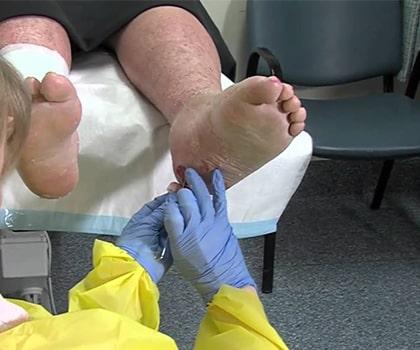 Diabetic Foot Vascular Surgery
