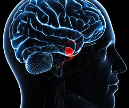 Diagnostic Cerebral Angiogram