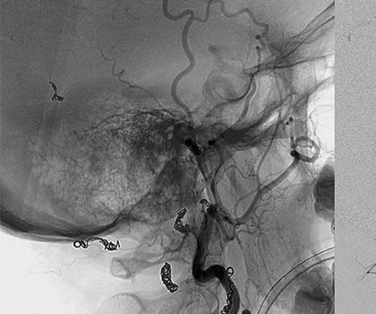 Pre Operative Embolization