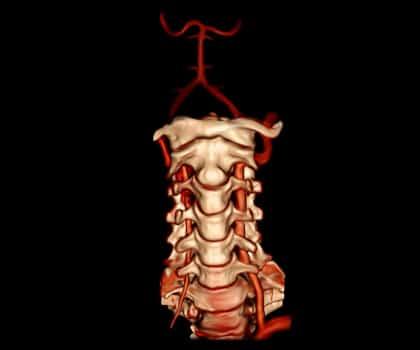 Vertebral Artery Stenting