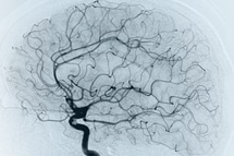 Best Neuro Vascular Surgery in Hyderabad
